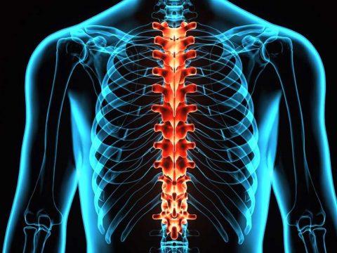 دلایل تنگی کانال نخاعی - ورزش درمانی