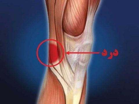 درد پشت زانو - ورزش درمانی