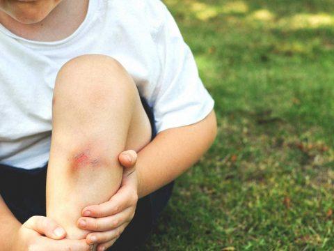 کوبیدگی و خونمردگی عضله چیست؟ - ورزش درمانی