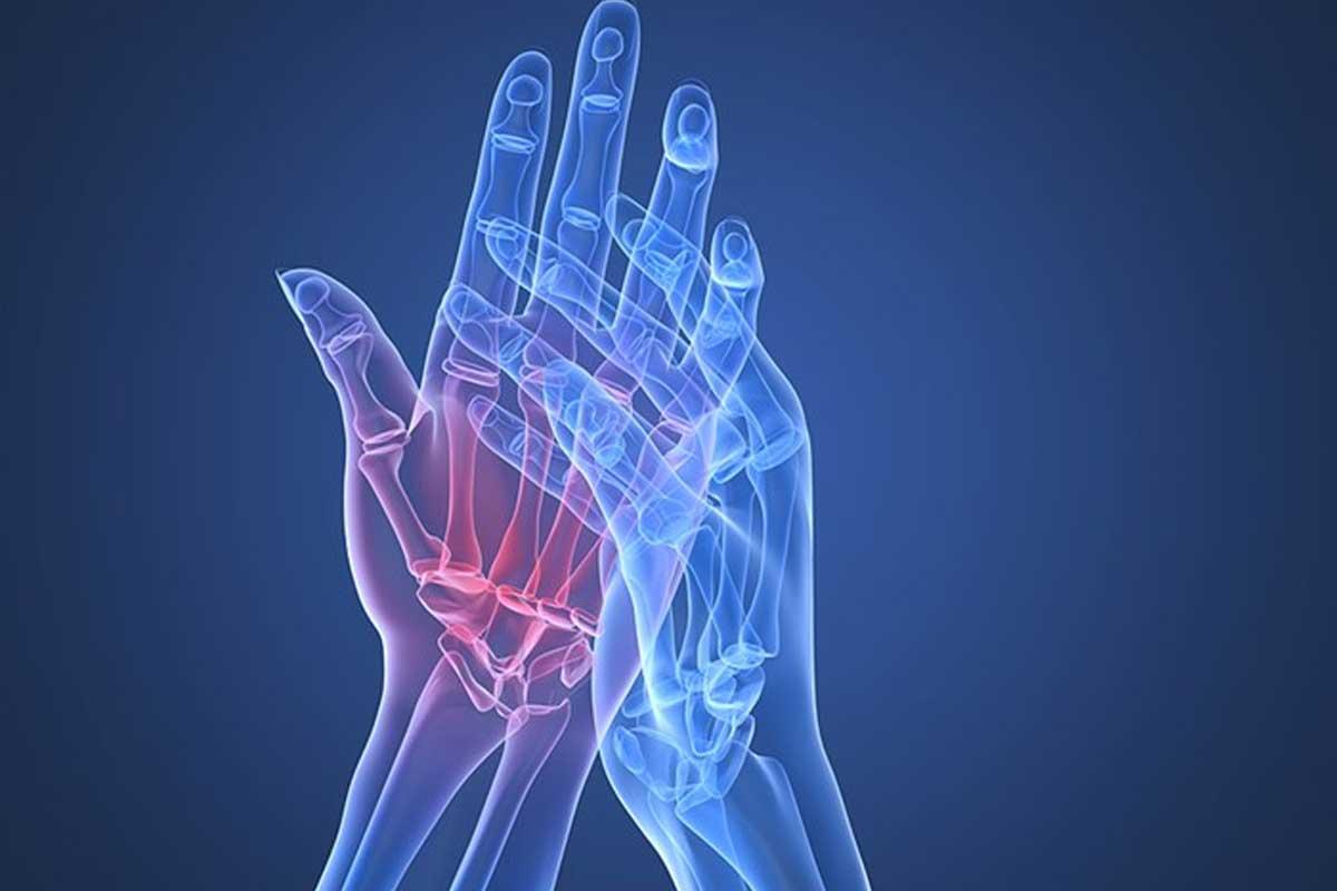 روماتیسم مفصلی یا آرتریت روماتوئید چیست؟ - ورزش درمانی