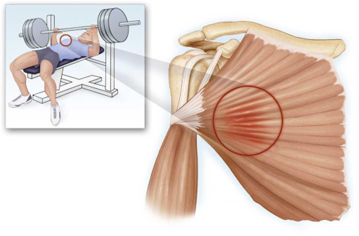 درمان پارگی عضله ی سینه ای - ورزش درمانی
