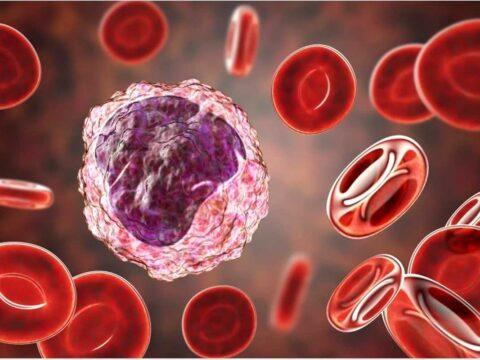 مونوسیت در آزمایش خون و طراحی تمرین بدنسازی